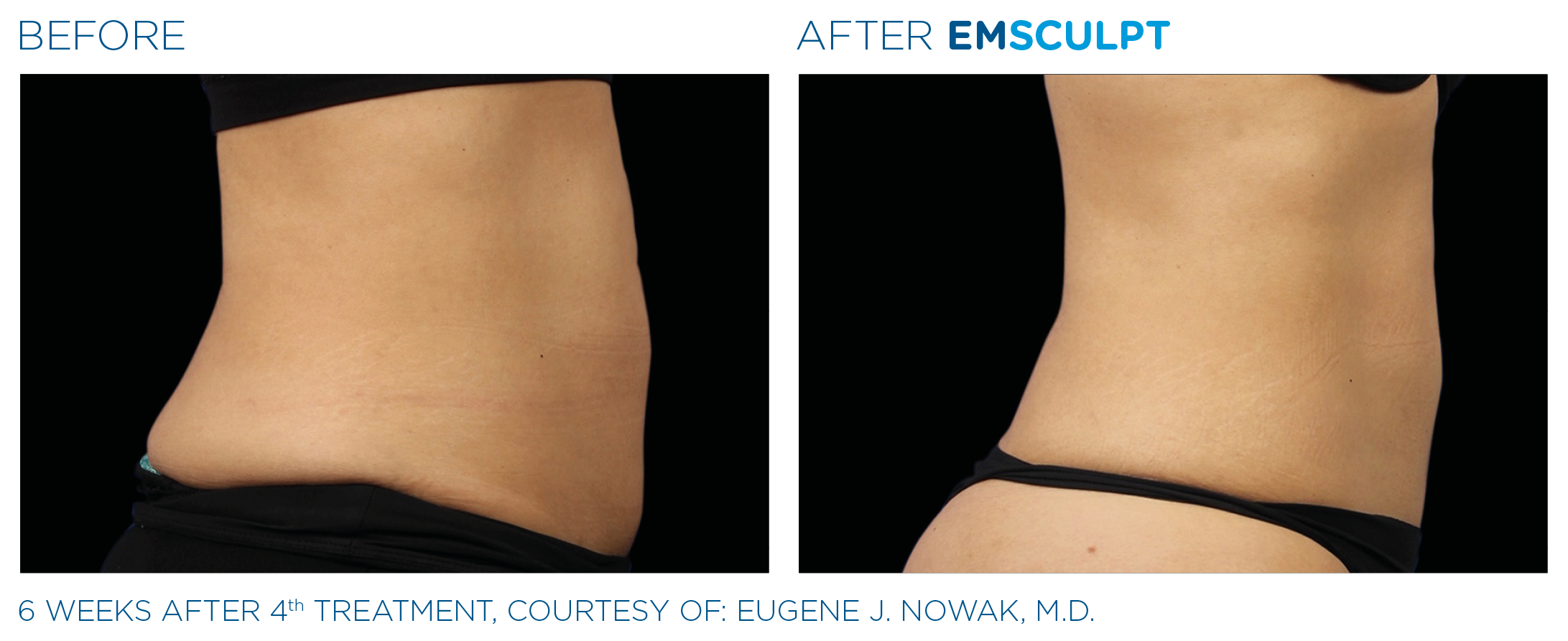 Emsculpt before and after