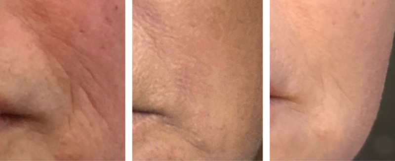 Vivace Microneedling Before and After